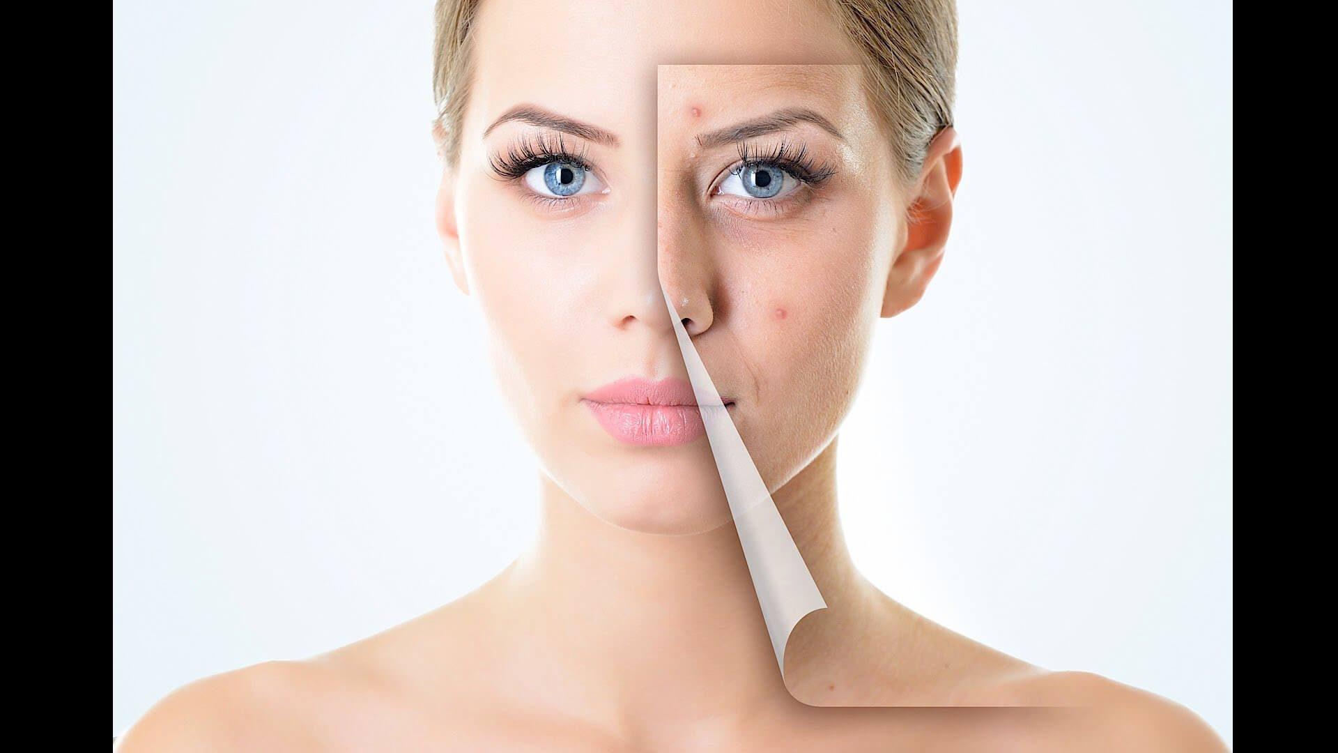 skinicer® REPAIR CARE, czyli jak dbać o skórę twarzy pod maską ochronną podczas pandemii?